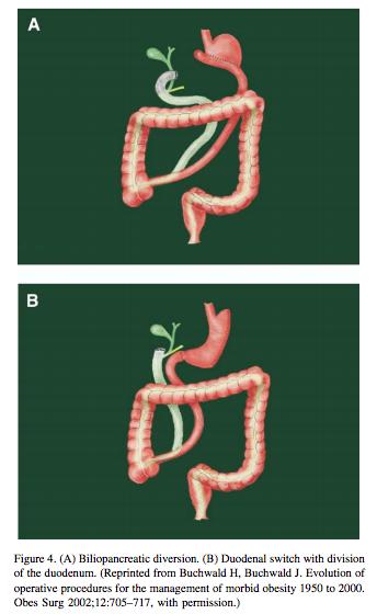 Biliopancreatic Diversion, Duodenal Switch