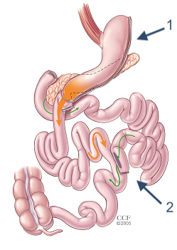 Biliopancreatic Diversion with Duodenal Switch illustration